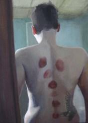 A Man's Back Full of Hickeys